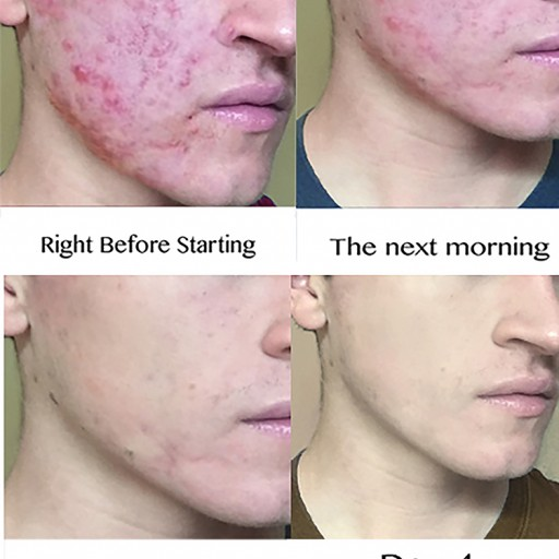 Breakthrough Organic Alternative to Leading Prescription Acne Treatments Developed by 'Z Skin'